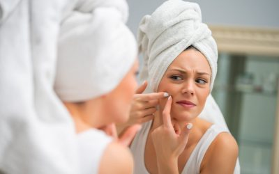 Best Vitamins For Acne – Top 4 Picks For Your Skin