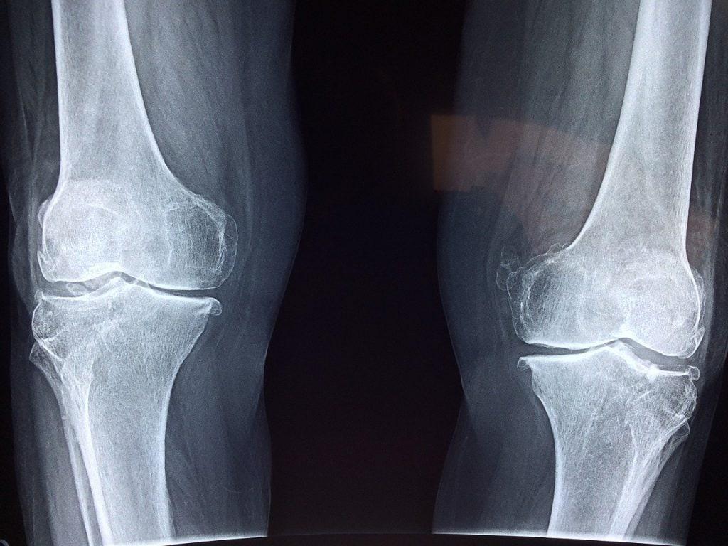 Medix Select Limbex for bones